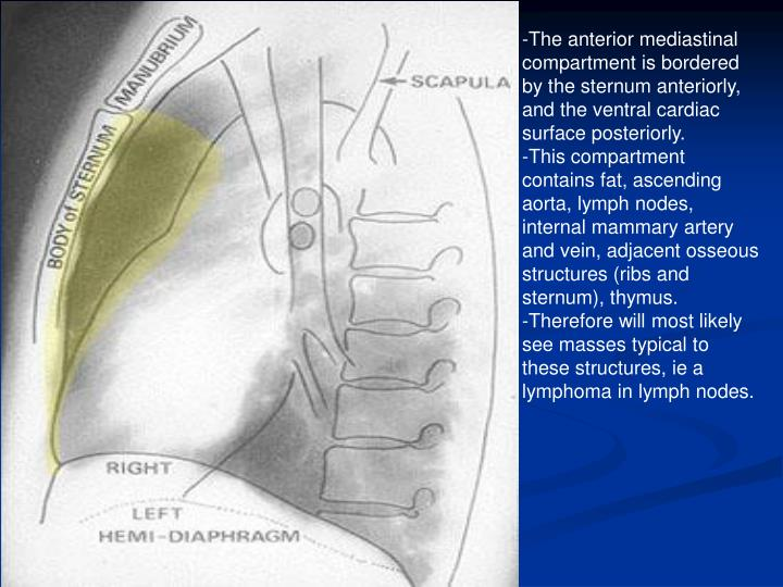 -The anterior mediastinal compartment is bordered by the sternum anteriorly, and the ventral cardiac...