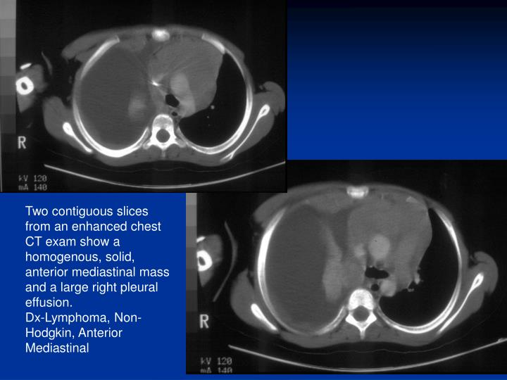Two contiguous slices from an enhanced chest CT exam show a homogenous, solid, anterior mediastinal mass and a large right pleural effusion.