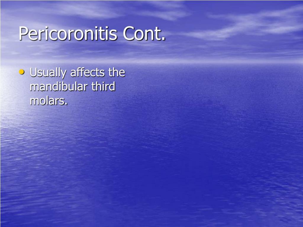 Pericoronitis Cont.