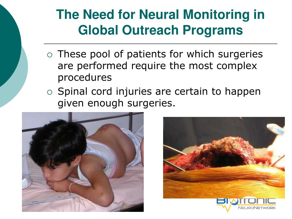 The Need for Neural Monitoring in Global Outreach Programs