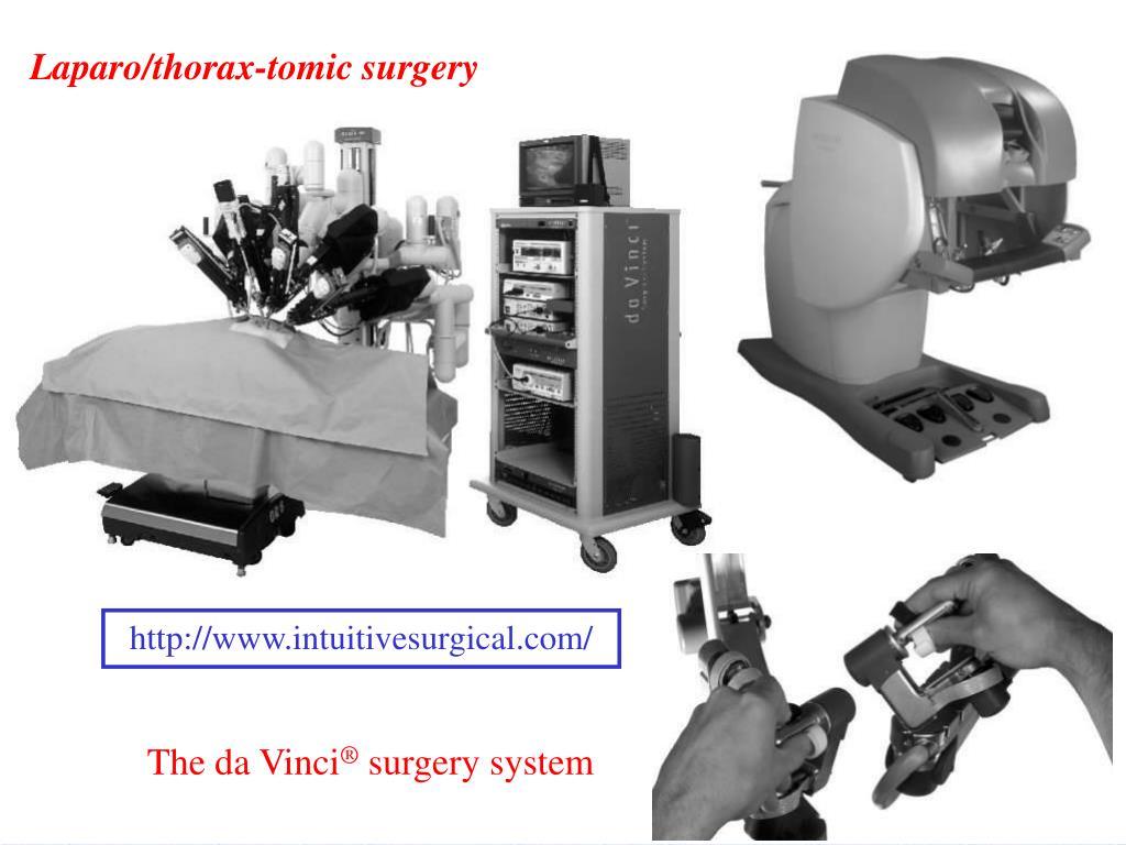 Laparo/thorax-tomic surgery
