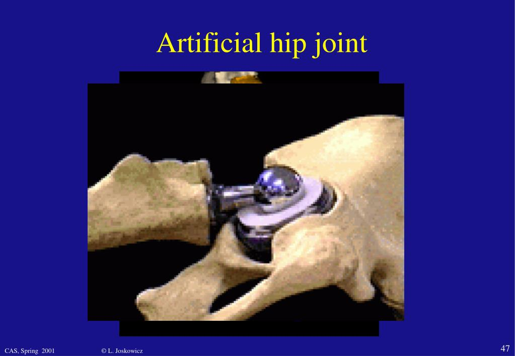 Artificial hip join