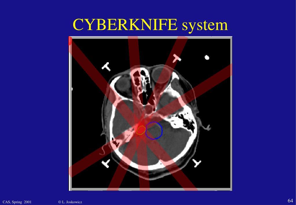 CYBERKNIFE system