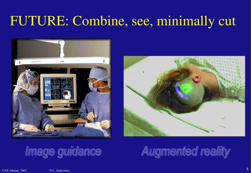FUTURE: Combine, see, minimally cut