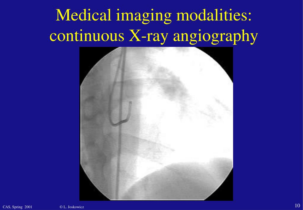 Medical imaging modalities: continuous X-ray angiography