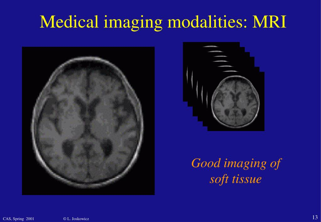 Medical imaging modalities: MRI
