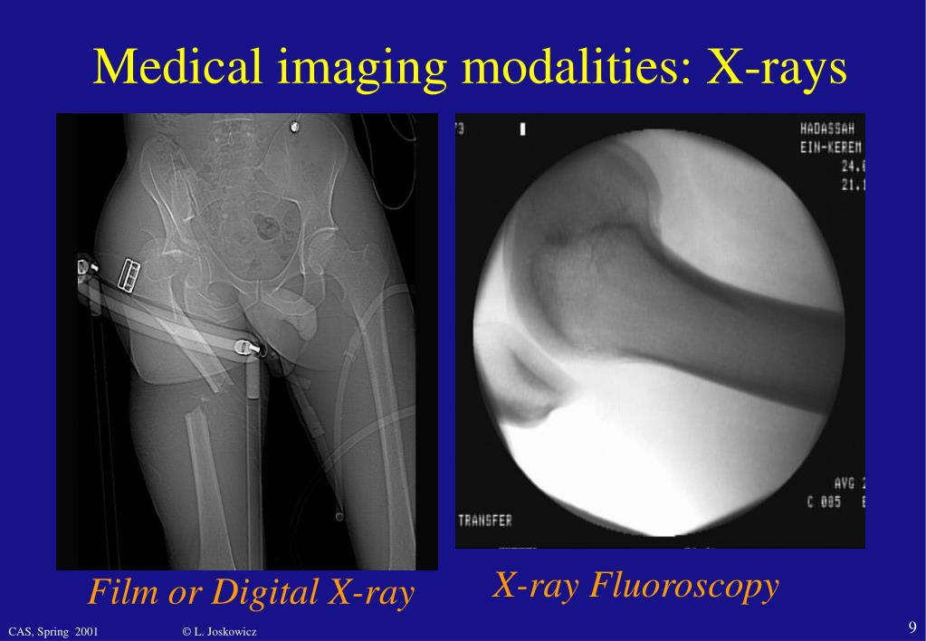 Medical imaging modalities: X-rays