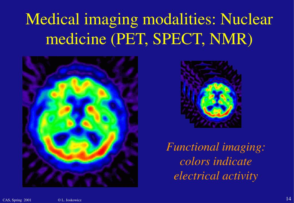 Medical imaging modalities: Nuclear medicine (PET, SPECT, NMR)