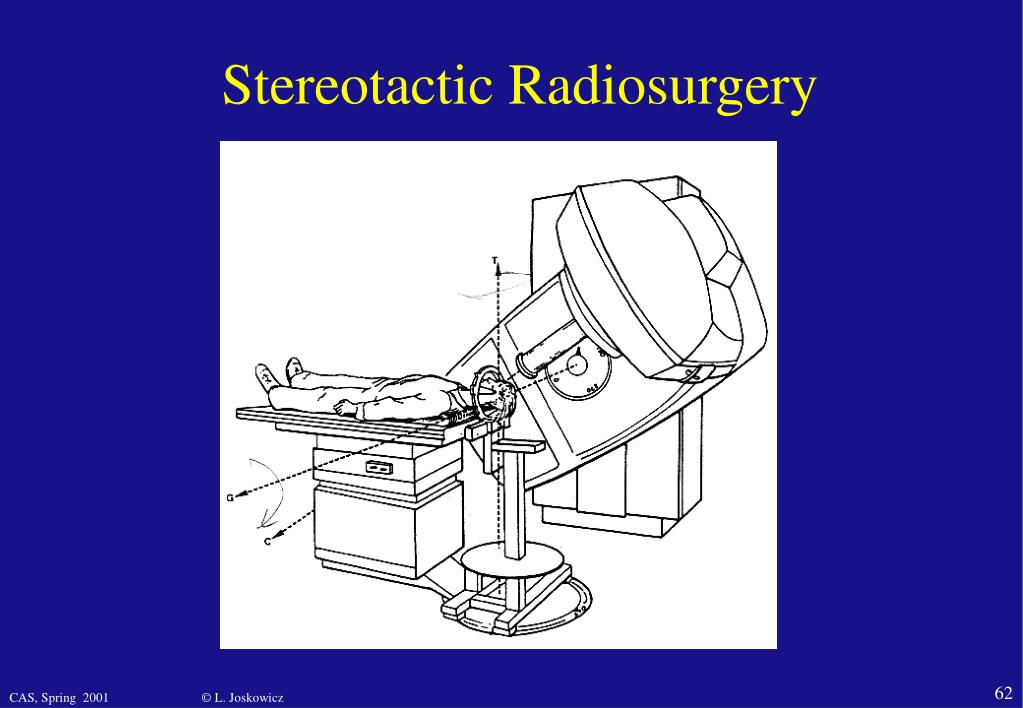 Stereotactic Radiosurgery