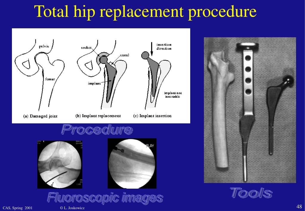 Total hip replacement procedure
