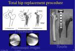 total hip replacement procedure47