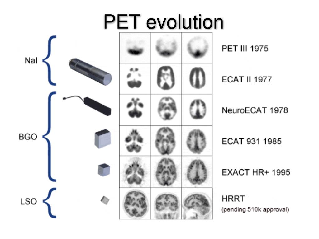 PET evolution