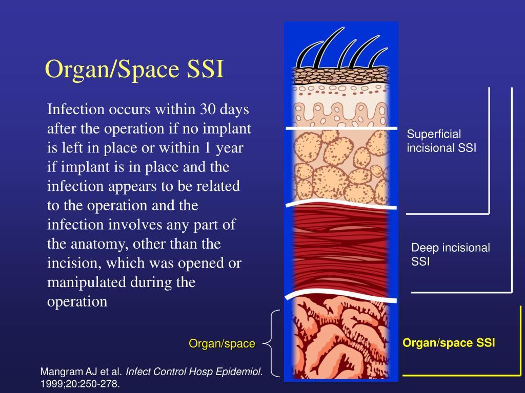 Organ/space SSI