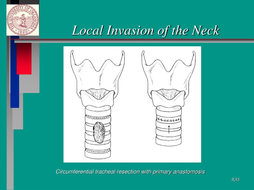 Local Invasion of the Neck