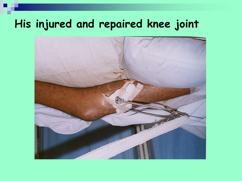 His injured and repaired knee joint