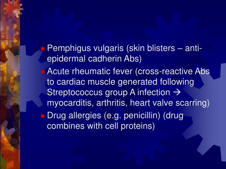 Pemphigus vulgaris (skin blisters – anti-epidermal cadherin Abs)