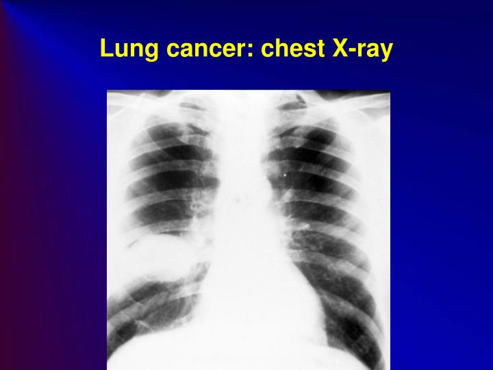 Lung cancer: chest X-ray