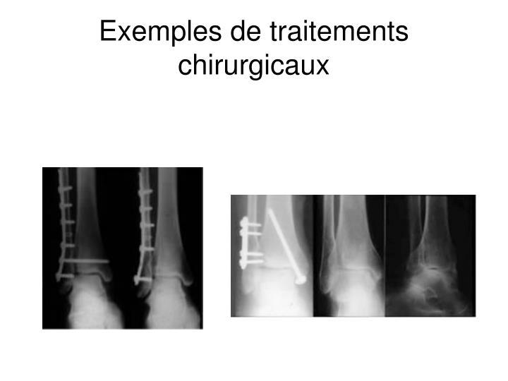 Exemples de traitements chirurgicaux