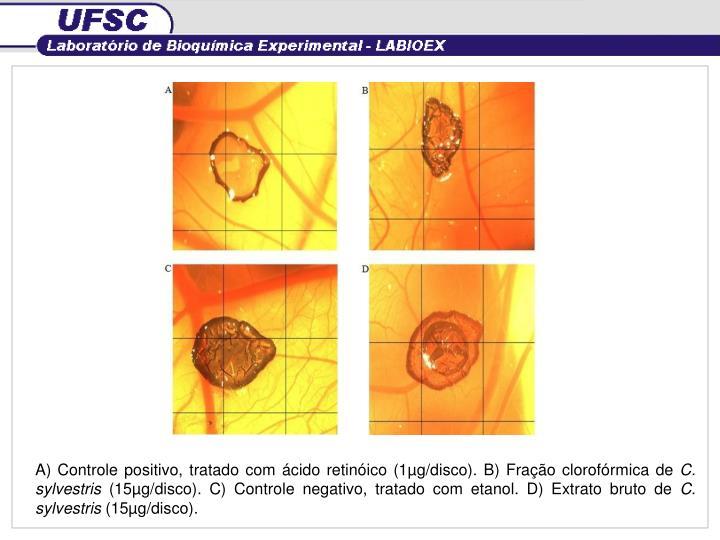 A) Controle positivo, tratado com ácido retinóico (1µg/disco). B) Fração clorofórmica de
