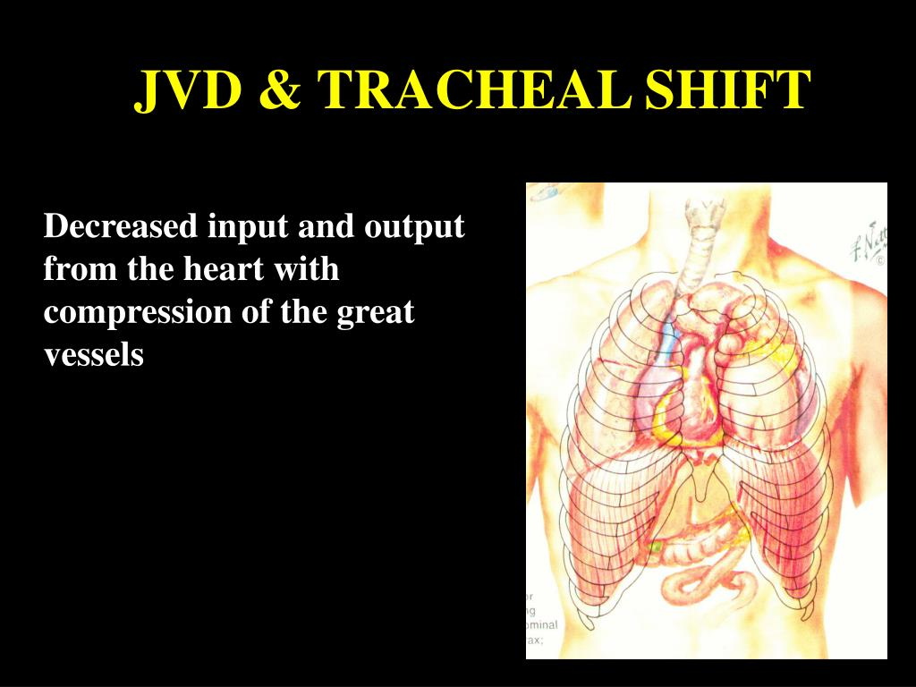 JVD & TRACHEAL SHIFT