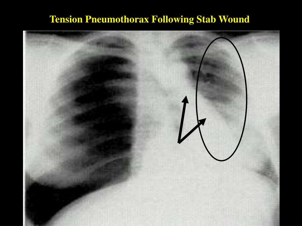 Tension Pneumothorax Following Stab Wound