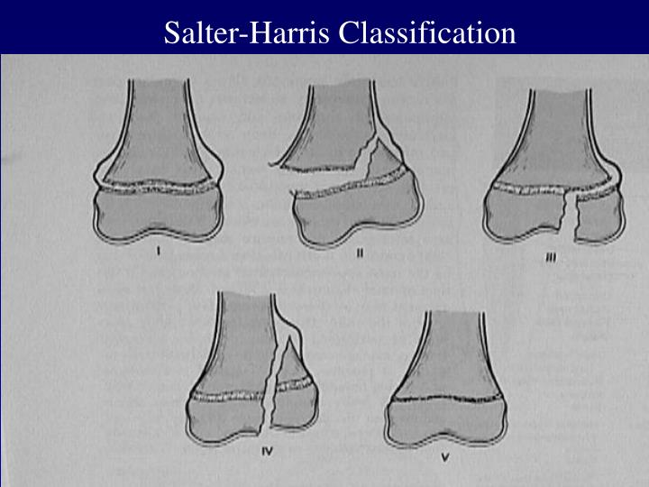Salter-Harris Classification