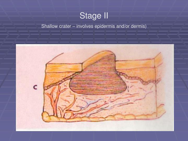 Stage II