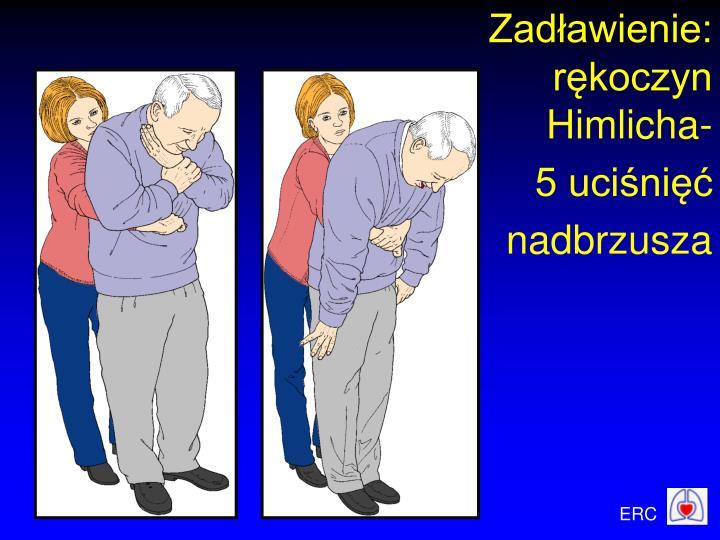 Zadławienie:     rękoczyn Himlicha-