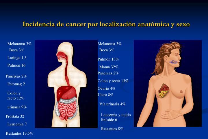 Incidencia de cancer por localización anatómica y sexo