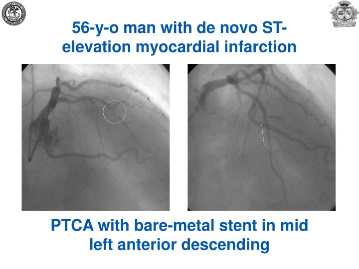 56-y-o man with de novo ST-elevation myocardial infarction