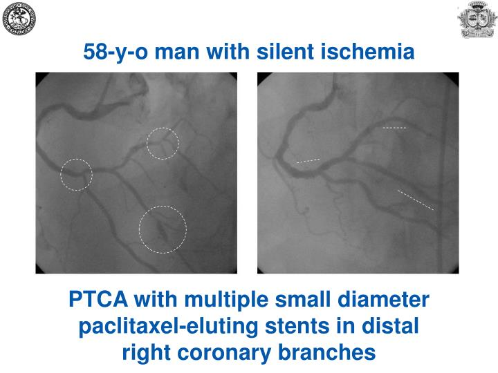 58-y-o man with silent ischemia