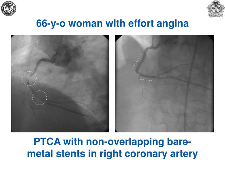 66-y-o woman with effort angina