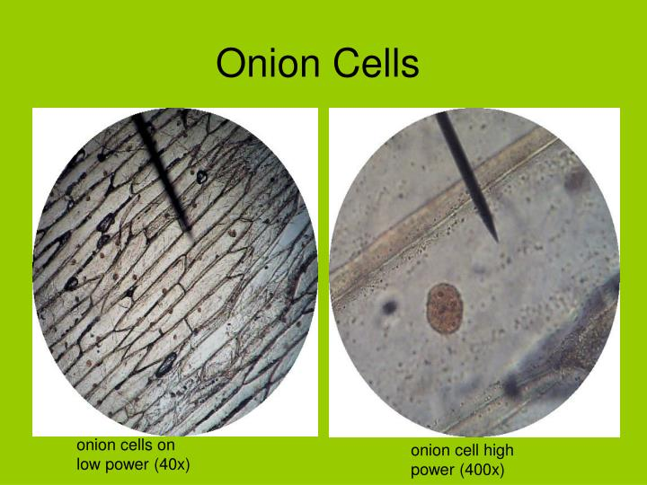 onion cells microscopes In a onion cell under the microscope the nucleus looks circular and seems to lye  in the central part of the cell but in other cells it seams compressed and pushed.