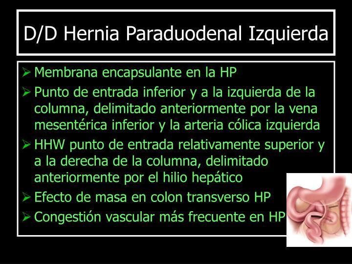 D/D Hernia Paraduodenal Izquierda