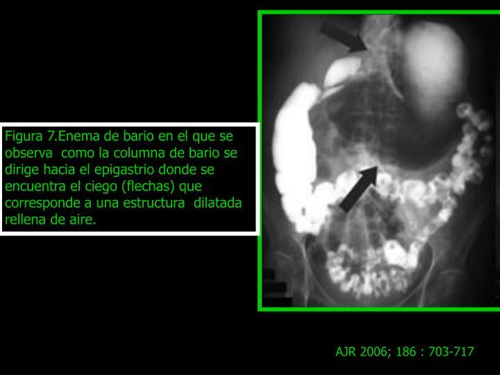 Figura 7.Enema de bario en el que se observa  como la columna de bario se dirige hacia el epigastrio donde se encuentra el ciego (flechas) que corresponde a una estructura  dilatada rellena de aire.
