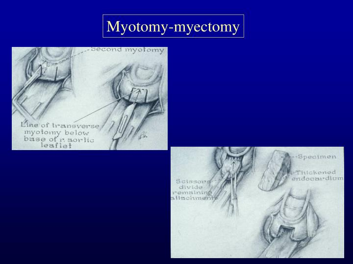 Myotomy-myectomy