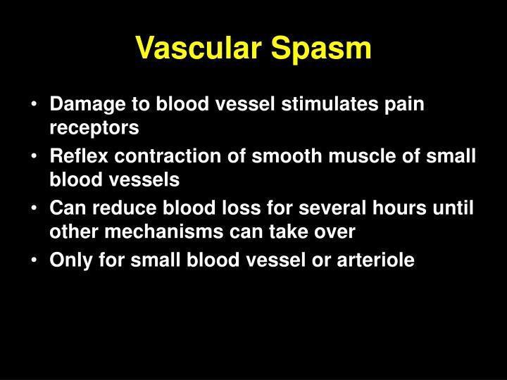 Vascular Spasm
