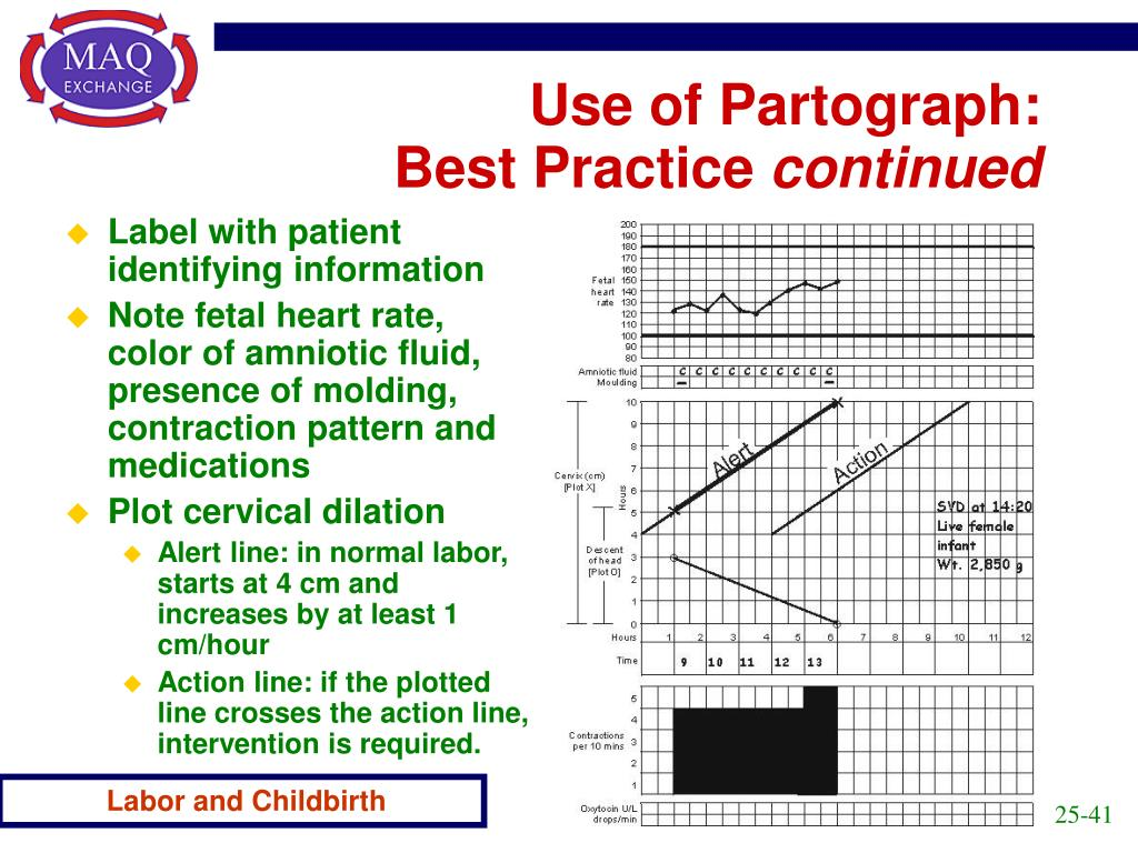 Use of Partograph: