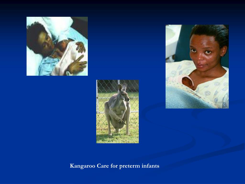 Kangaroo Care for preterm infants