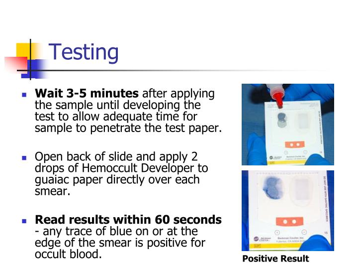Ppt Point Of Care Testing Hemoccult 174 Fecal Occult