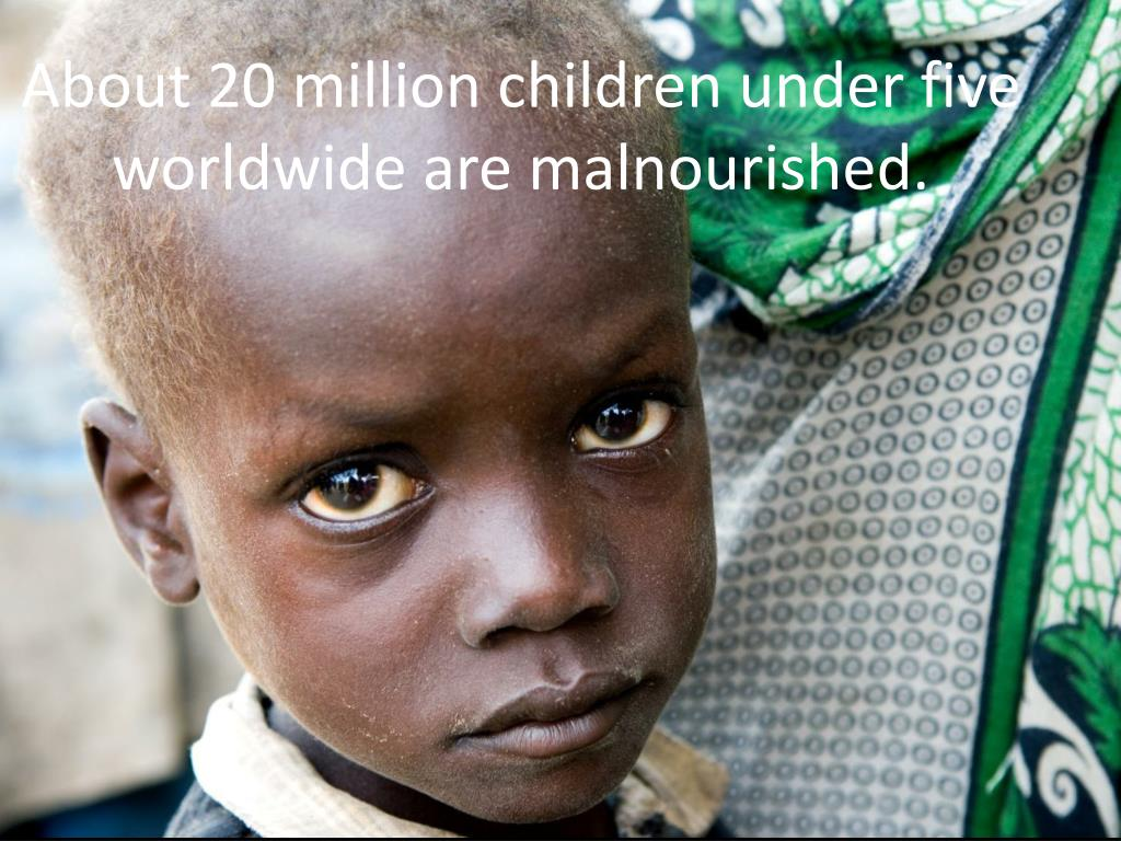 About 20 million children under five worldwide are malnourished.