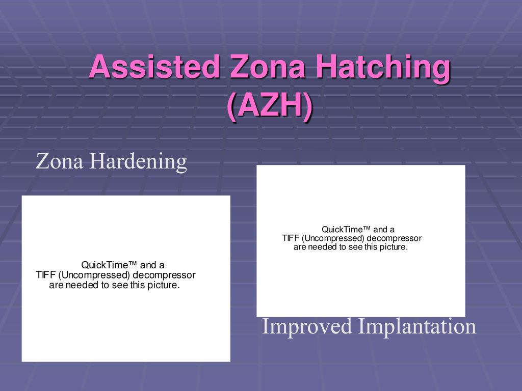 Assisted Zona Hatching (AZH)
