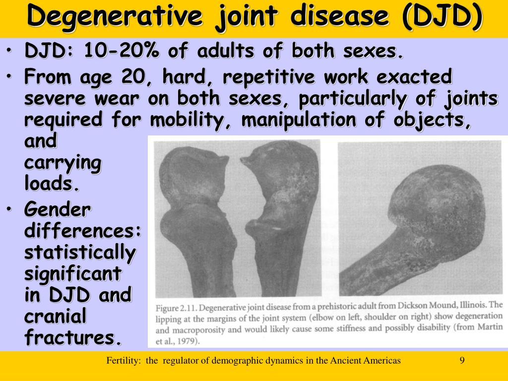 Degenerative joint disease (DJD)