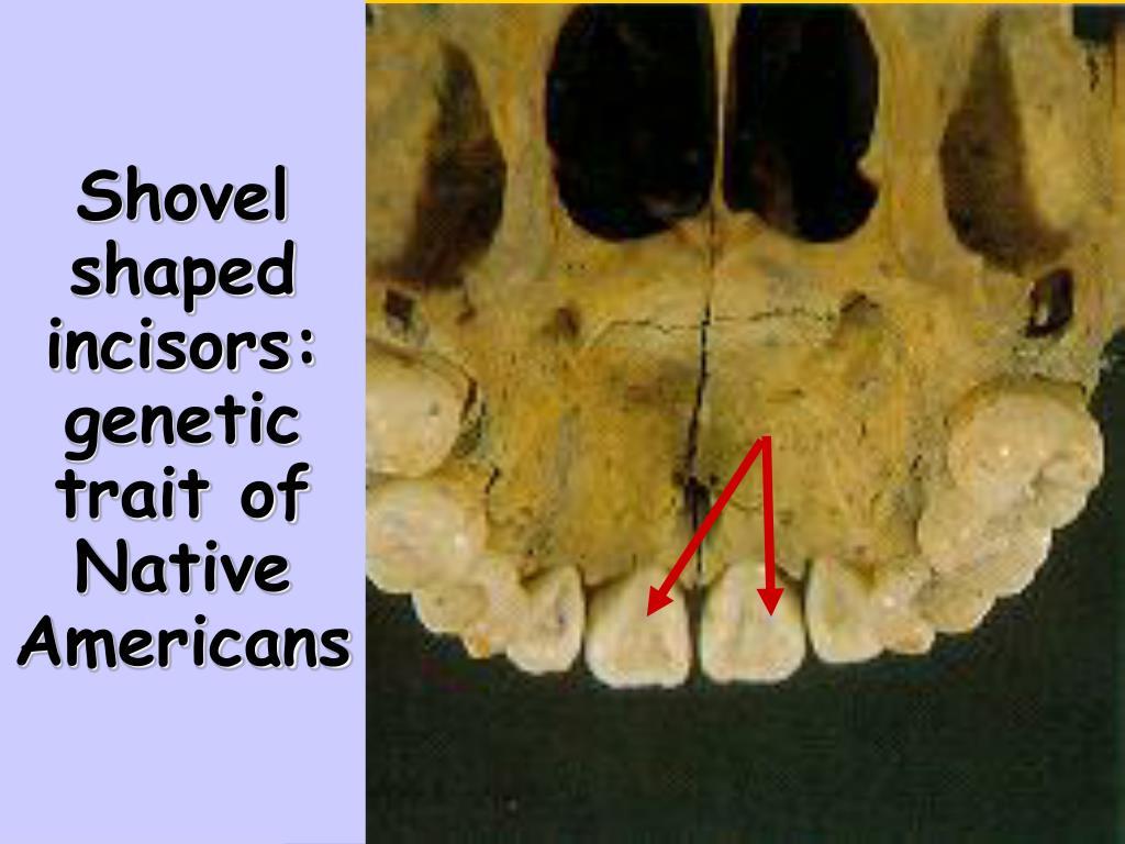Shovel shaped incisors:
