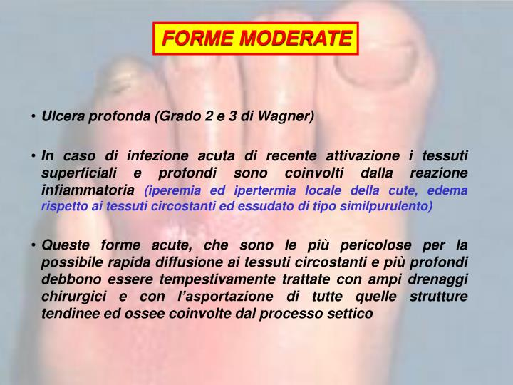 FORME MODERATE