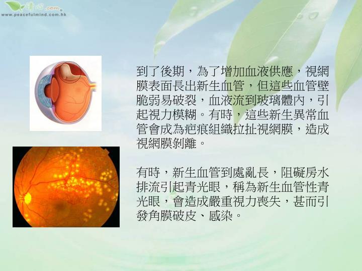 到了後期,為了增加血液供應,視網膜表面長出新生血管,但這些血管壁脆弱易破裂,血液流到玻璃體內,引起視力模糊。有時,這些新生異常血管會成為疤痕組織拉扯視網膜,造成視網膜剝離。