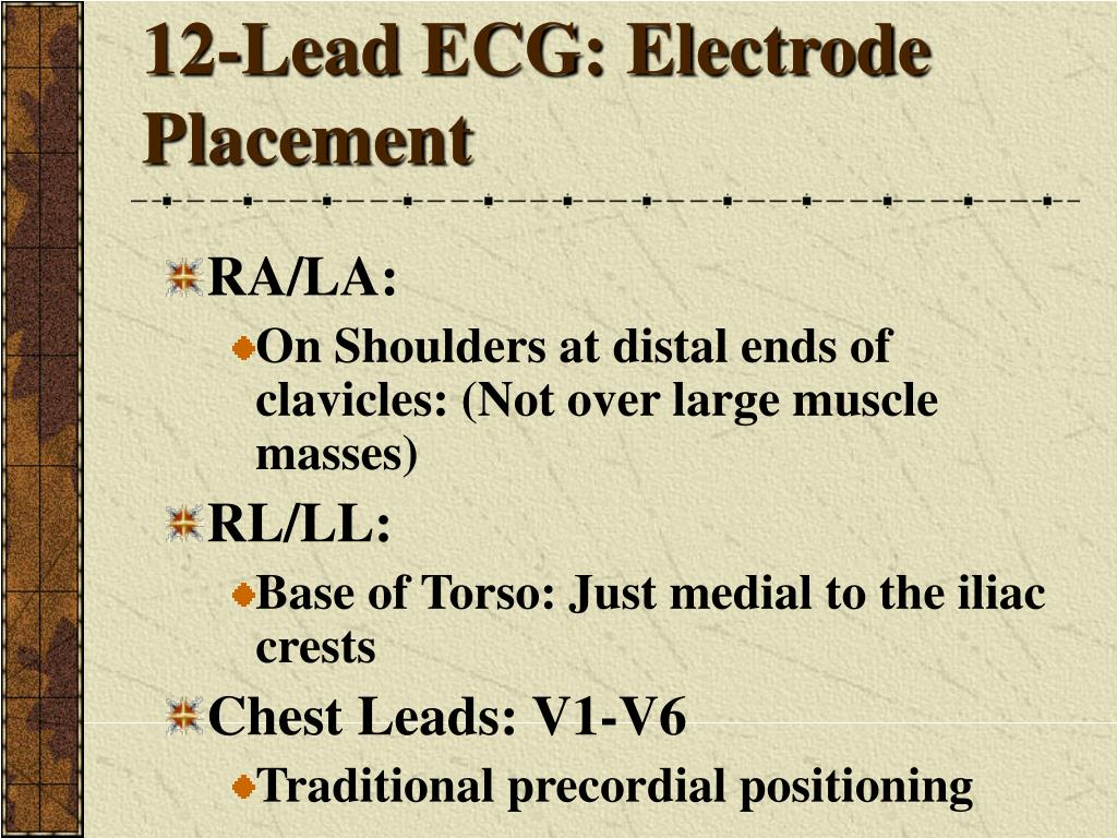 12-Lead ECG: Electrode Placement