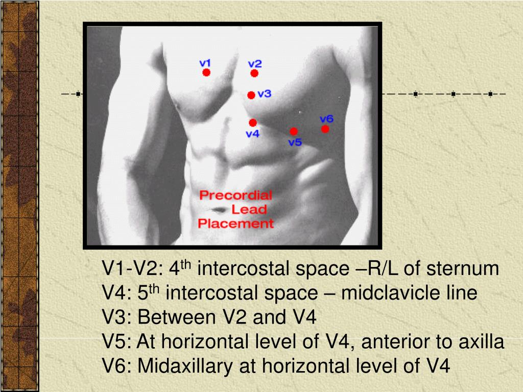V1-V2: 4