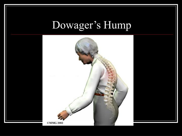 Dowager's Hump