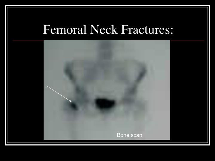 Femoral Neck Fractures: